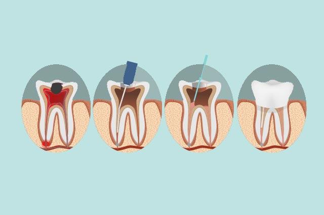 Endodoncia Menorca Dentista